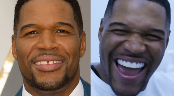 Michael Strahan, before and after dental procedure