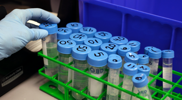 A researcher works in a stem cell lab at the Stanford University
